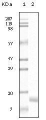 NB110-60497 - Gamma-Synuclein / SNCG