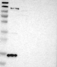 NBP1-89996 - Gamma-Synuclein / SNCG