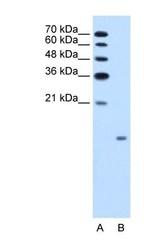 NBP1-59300 - Glucagon