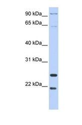 NBP1-58993 - Granzyme A (GZMA)
