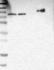 NBP1-89669 - THOC1