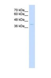 NBP1-58027 - Haptoglobin