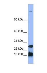 NBP1-59337 - Hepcidin / HAMP