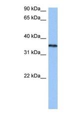 NBP1-57166 - hnRNP-A2/B1 / HNRNPA2B1