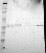 NBP1-89675 - hnRNP-A2/B1 / HNRNPA2B1