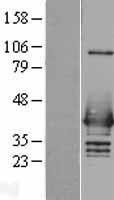 NBL1-11638 - hnRNP C1 + C2 Lysate