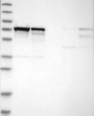 NBP1-84555 - hnRNP-M / HNRNPM