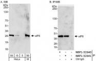 NBP1-52641 - EIF6 / ITGB4BP