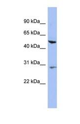 NBP1-55236 - Cytokeratin 75