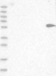 NBP1-87845 - Cytokeratin 75