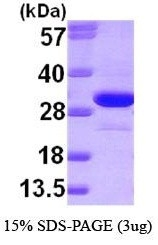 NBP1-30301 - Ketohexokinase