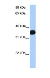 NBP1-55415 - LDHB