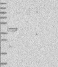 NBP1-92073 - Lipoyltransferase 1