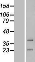 NBL1-12553 - lipoyltransferase 1 Lysate