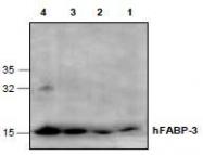 NBP1-45549 - FABP1