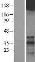NBL1-11346 - Metabotropic Glutamate Receptor 1 Lysate