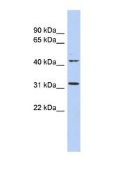 NBP1-55179 - METTL6