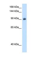 NBP1-70640 - Mineralocorticoid receptor