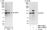NBP1-71809 - MPHOSPH8