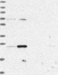 NBP1-86959 - TFAM / TCF6