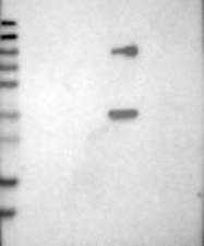 NBP1-85241 - Mu-crystallin homolog