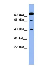 NBP1-60045 - Neurotensin receptor  1