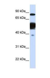 NBP1-53226 - Nexilin