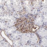 NBP1-85244 - Myosin-9 / MYH9
