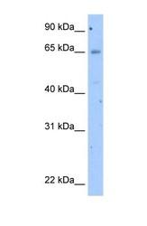 NBP1-59358 - Occludin