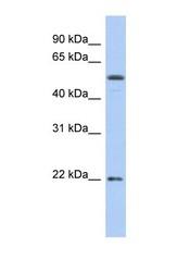 NBP1-59435 - Occludin