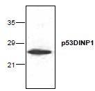 NBP1-45757 - TP53INP1