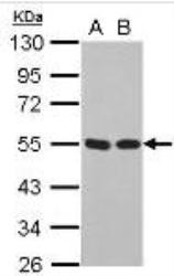NB200-104 - TP53 / p53
