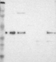 NBP1-89917 - CDKN1C / KIP2