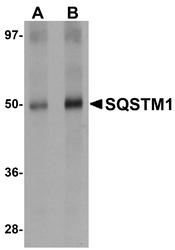 NBP1-77081 - SQSTM1