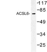 NBP1-00701 - ACSL6