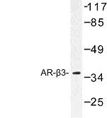 NBP1-00716 - Beta-3 adrenergic receptor