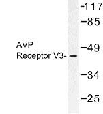 NBP1-00722 - Vasopressin V1b receptor (V1bR)