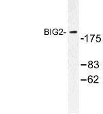 NBP1-00725 - ARFGEF2