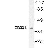 NBP1-00746 - CD153 / CD30L