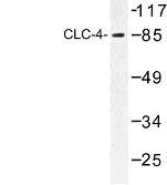 NBP1-00755 - CLCN4