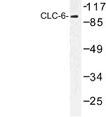 NBP1-00756 - CLCN6