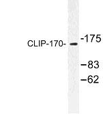 NBP1-00758 - CLIP1 / Restin