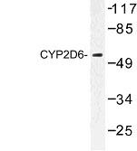 NBP1-00773 - CYP2D6