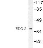 NBP1-00788 - EDG2 / LPAR1