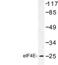 NBP1-00799 - EIF4E