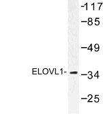 NBP1-00800 - ELOVL1