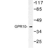 NBP1-00854 - PRLHR / GPR10