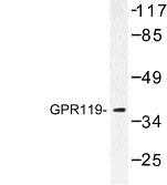 NBP1-00857 - GPR119