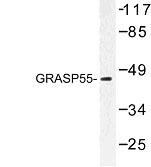 NBP1-00862 - GORASP2 / GOLPH6