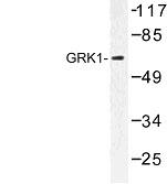 NBP1-00864 - Rhodopsin kinase
